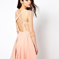 Rare Lace Open Back Skater Dress at asos.com