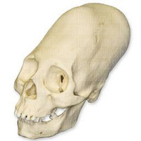 Human  Peruvian Female Skull with Cranial Binding (elongated)  (Homo sapiens) | WBC-200